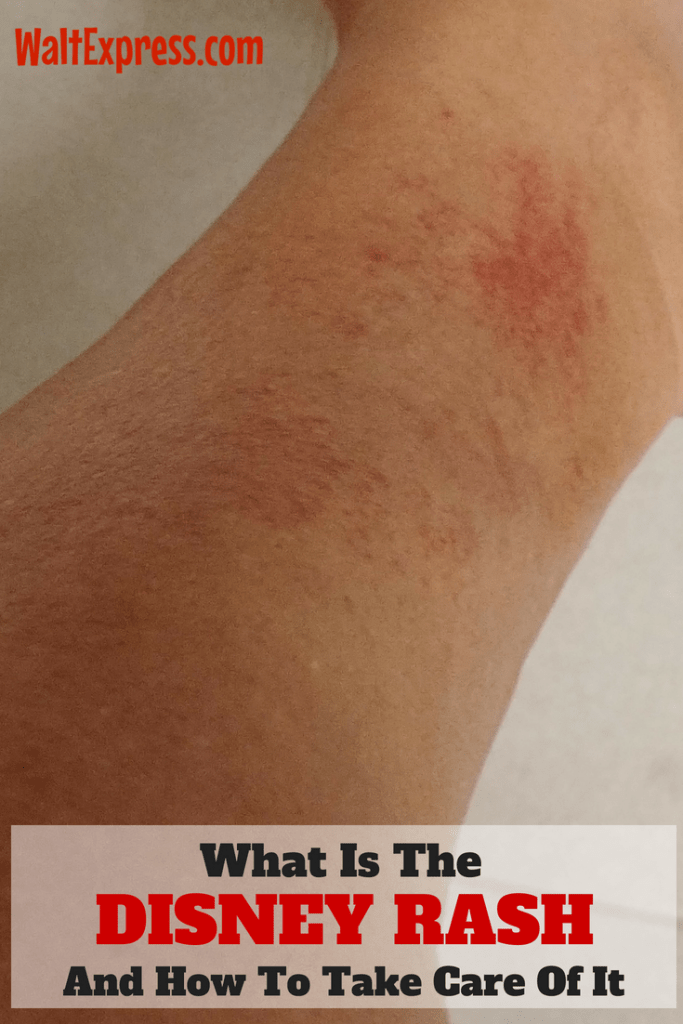 What Is The Disney Rash And How To Take Care Of It